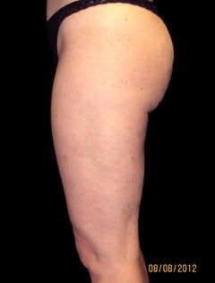 Cellulaze after 614469