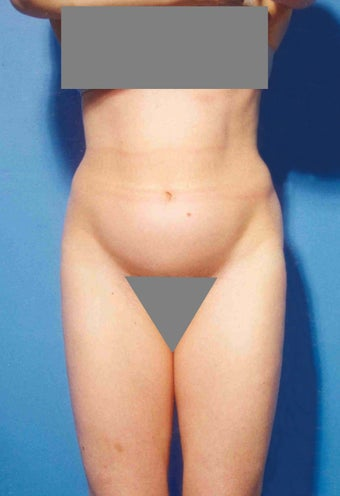 Abdominoplasty before 356389
