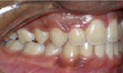 Braces and Extraction after 349088