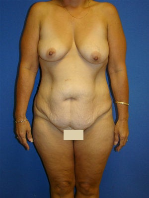 Extended Tummy Tuck, Breast Lift with Implants before 154505