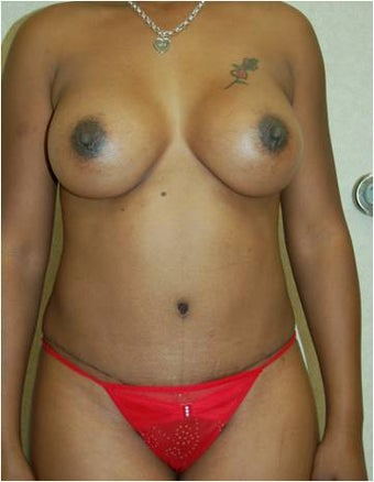 Breast augmentation tummy tuck after 378895