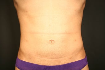 Smartlipo after 266193