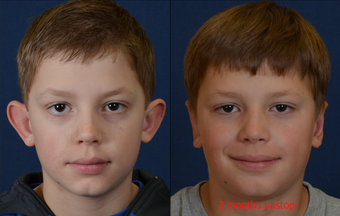 9 Year Old Male Child Treated for Prominent Ears before 639870