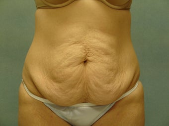 Abdominoplasty (Tummy Tuck) before 220180
