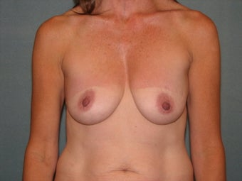 Mastopexy augmentation 333448