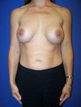 Breast Implant Revision before 123402