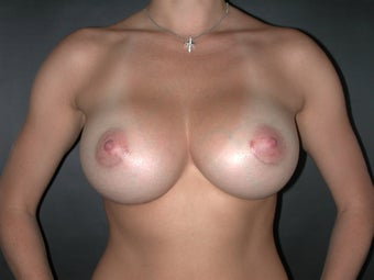 Breast Augmentation after 110077