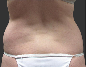 Exilis before 423761