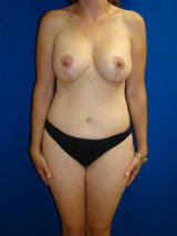 Extended Tummy Tuck Surgery and Breast Implants