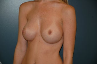 Breast Augmentation after 240913