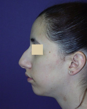 Nose and chin surgery before 135023