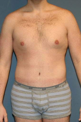 Male tummy tuck after 617898