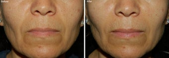 Fillers for Nasolabial Folds  before 97881