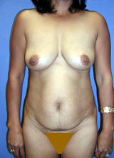 Tummy Tuck Surgery (Adominoplasty) and Augmentation before 122962