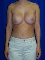 Revision Breast Surgery, Symmastia Repair, Internal Sutures (Internal Bra) after 394941