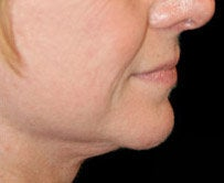 Chin Augmentation after 583776