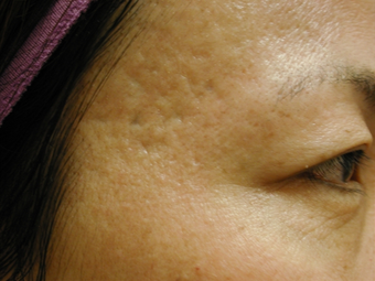 Acne Scars before 200602