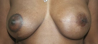 Breast Reconstruction after 517492