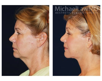 Facial Rejuvenation - Neck Lift 395329