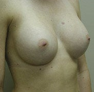 Breast Augmentation after 139573