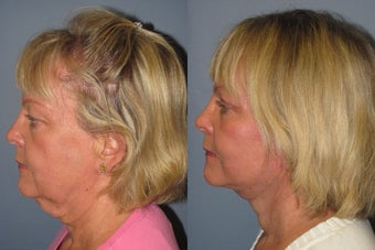 Lite Lift, Liposuction of the neck, eyelid lift before 523504