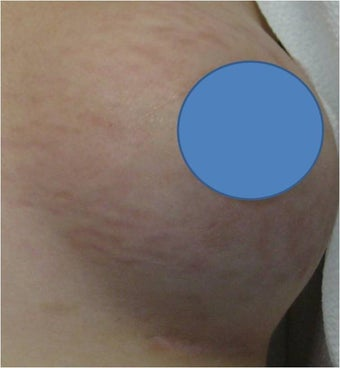 Vascular Laser for Red Stretch Marks of the breast after 82436