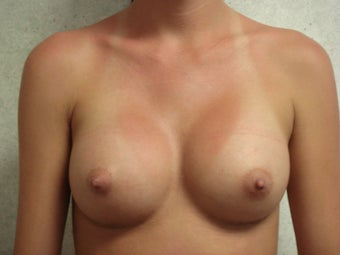 Breast Augmentation after 140679