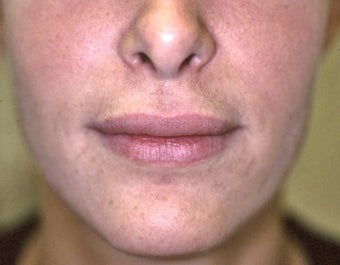 Lip Augmentation with Liquid Injectable Silicone after 157589