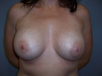 Breast Implant Removal and Breast Lift before 589916
