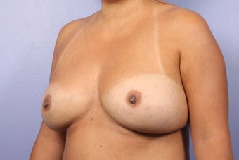 Breast Implant Revision before 622843