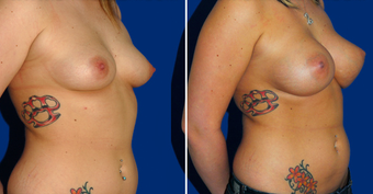 Breast Implants after 494494