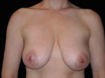 Vertical breast lift before 307431