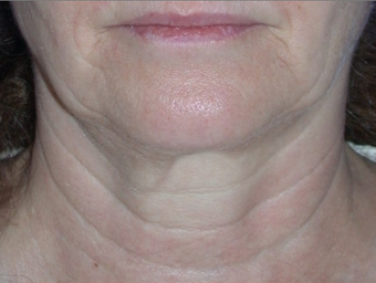 Necklift before 208447