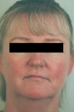 Rosacea and Facial Spider Veins after 106541