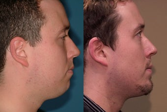 Chin Augmentation before 409093