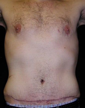 Male tummy Tuck, Flank Liposuction, Male Breast Reduction after 578158