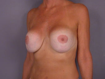 Breast Revision Surgery  before 306998