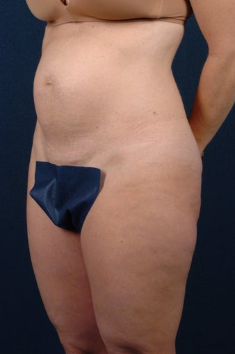 Abdominoplasty-Float