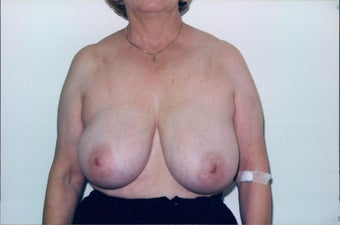 Breast Reduction before 218958