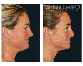 Chin Liposuction 395806