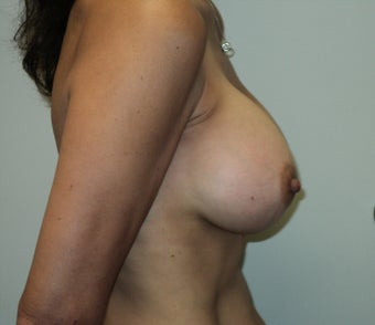 Breast Augmentation 630241