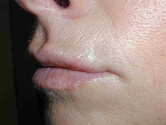 Restylane in Upper Lip after 108822