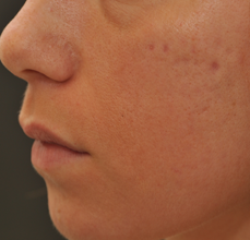 Acne Scarring before 426034