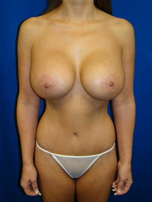 Tummy Tuck Surgery (abdominoplasty) and Breast Implants after 133927