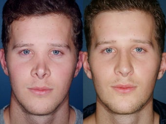 Revision rhinoplasty before 334244
