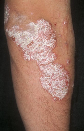 Psoriasis Treatment before 359385