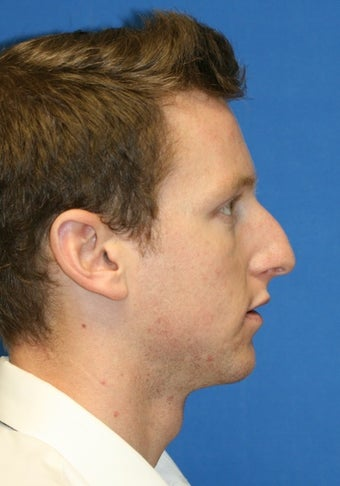 Rhinoplasty before 223264