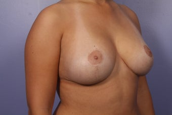 Breast Lift  after 302534
