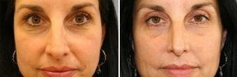 45 years old / two weeks post lower eye lid with fat transpositioning and Juvederm in nasolabial folds. before 343922