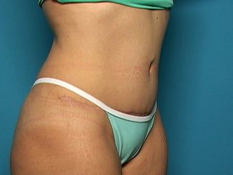 Abdominoplasty after 134583